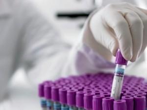 cercetare cancer