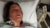 femeie coma